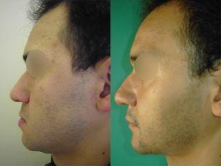 Chirurgie maxillo-faciale - Dr Fabrice Poirier