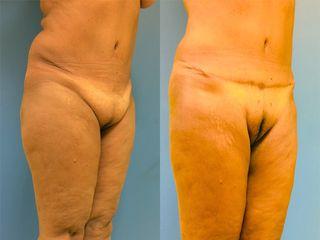 Abdominoplastie - Dr Fabrice Poirier