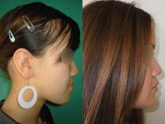 Chirurgie maxillo-faciale-740856