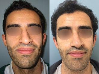 Chirurgie maxillo-faciale-740858