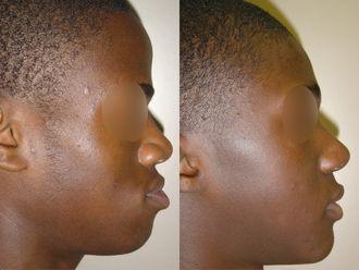 Chirurgie maxillo-faciale-740861