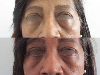 Blépharoplastie - 740883