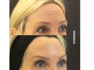 Botox-625306