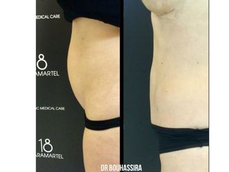 Liposuccion-625307