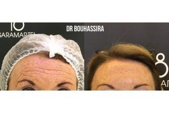 Botox-625318