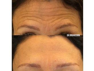 Botox-625319