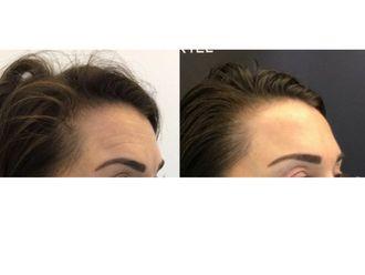 Botox-625322