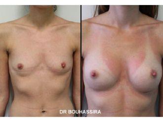 Augmentation mammaire-625376