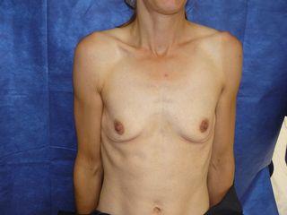 prothèse pré opératoire