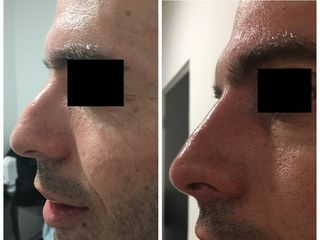 Avant / après rhinoplastie médicale