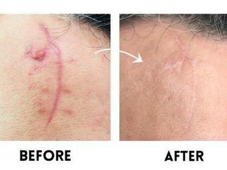 Avant après Traitement des cicatrices