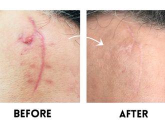 Traitement cicatrice - 636275