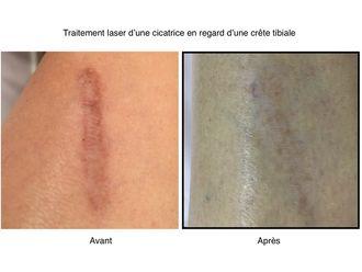 Traitement cicatrice - 636277