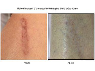 Avant / après cicatrice
