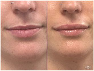 Augmentation des lèvres-647409