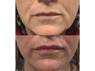 Augmentation des lèvres-647897
