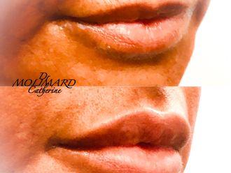 Augmentation des lèvres-662136