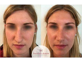 Avant après  rhinoplastie chirurgie esthetique