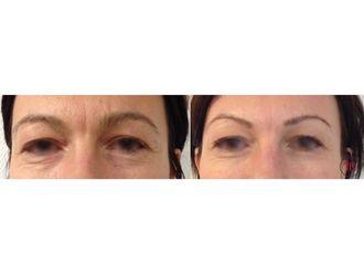 Botox-742625