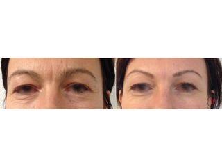 Botox - Dr Romain Tourniaire
