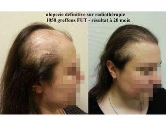 Greffe de cheveux-530016