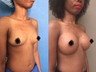 Augmentation mammaire - 607390