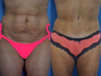 Abdominoplastie - 630001