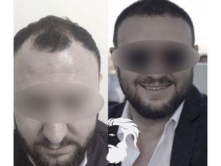 La greffe de cheveux