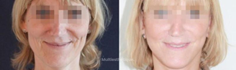 lifting-visage-nice.jpg