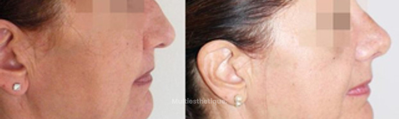 rhinoplastie-nice-chirurgie-esthetique-nez.jpg