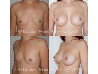 Augmentation mammaire - 618597