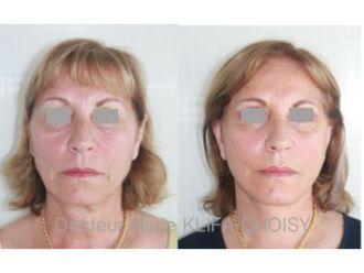 Chirurgie Esthétique-620450