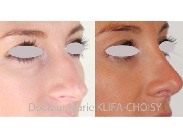 Docteur Marie Klifa-Choisy