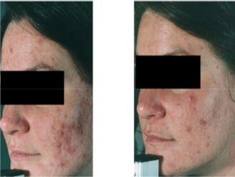 Traitement anti-acné - 559878