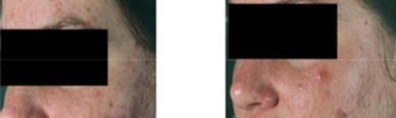 Dr Thibault - Centre Laser Et Médecine Esthétique