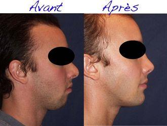 Chirurgie maxillo-faciale - 542444