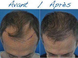 Avant après Greffe de cheveux par la technique FUE