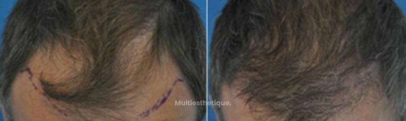 Greffe de cheveux par la technique FUE : la réimplantation capillaire