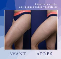 Varices - Dr Diala Haykal - Centre Medical Laser Esthetique Palaiseau