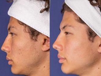 Traitement anti-acné - 699023