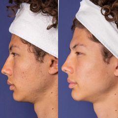 Traitement anti-acné - Dr Diala Haykal - Centre Medical Laser Esthetique Palaiseau