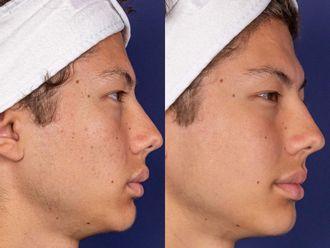 Traitement anti-acné-699025