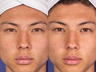 Traitement anti-acné-699027