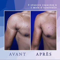 Vergetures - Dr Diala Haykal - Centre Medical Laser Esthetique Palaiseau