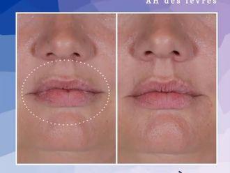 Augmentation des lèvres-737010