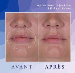 Augmentation des lèvres - Dr Diala Haykal - Centre Medical Laser Esthetique Palaiseau