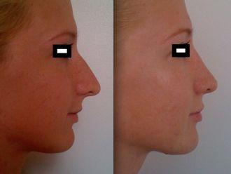 Chirurgie Esthétique-477266