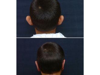 Chirurgie Esthétique-661115