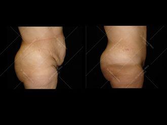 Abdominoplastie - 611630