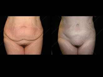 Abdominoplastie - 611631